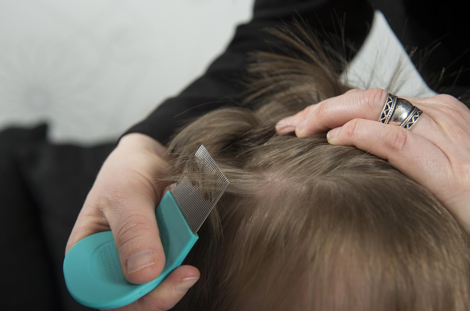 Как быстро вывести гнид на длинных волосах в домашних условиях