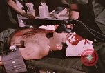 Image of wounded United States soldier Vietnam, 1969, second 59 stock footage video 65675022609