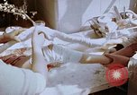 Image of Leg injuries from atomic bomb Hiroshima Japan, 1945, second 33 stock footage video 65675042173