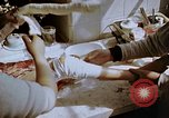 Image of Leg injuries from atomic bomb Hiroshima Japan, 1945, second 34 stock footage video 65675042173