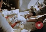 Image of Leg injuries from atomic bomb Hiroshima Japan, 1945, second 36 stock footage video 65675042173