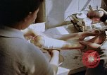 Image of Leg injuries from atomic bomb Hiroshima Japan, 1945, second 59 stock footage video 65675042173