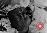 Image of wounded soldiers France, 1918, second 2 stock footage video 65675042407