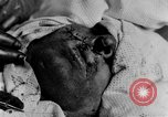 Image of wounded soldiers France, 1918, second 4 stock footage video 65675042407
