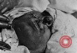 Image of wounded soldiers France, 1918, second 5 stock footage video 65675042407