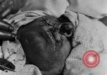 Image of wounded soldiers France, 1918, second 7 stock footage video 65675042407