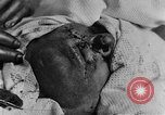 Image of wounded soldiers France, 1918, second 9 stock footage video 65675042407