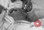 Image of abdominal wound surgery on World War 1 soldier France, 1918, second 5 stock footage video 65675042421