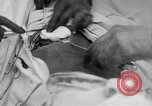 Image of abdominal wound surgery on World War 1 soldier France, 1918, second 11 stock footage video 65675042421
