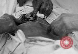 Image of abdominal wound surgery on World War 1 soldier France, 1918, second 14 stock footage video 65675042421