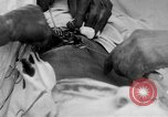 Image of abdominal wound surgery on World War 1 soldier France, 1918, second 19 stock footage video 65675042421