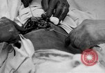 Image of abdominal wound surgery on World War 1 soldier France, 1918, second 20 stock footage video 65675042421