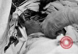 Image of abdominal wound surgery on World War 1 soldier France, 1918, second 22 stock footage video 65675042421