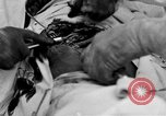 Image of abdominal wound surgery on World War 1 soldier France, 1918, second 23 stock footage video 65675042421