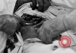 Image of abdominal wound surgery on World War 1 soldier France, 1918, second 27 stock footage video 65675042421