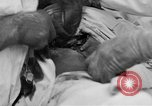 Image of abdominal wound surgery on World War 1 soldier France, 1918, second 31 stock footage video 65675042421