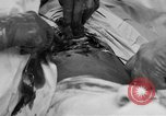 Image of abdominal wound surgery on World War 1 soldier France, 1918, second 35 stock footage video 65675042421