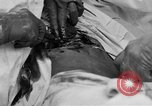 Image of abdominal wound surgery on World War 1 soldier France, 1918, second 36 stock footage video 65675042421