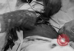 Image of abdominal wound surgery on World War 1 soldier France, 1918, second 41 stock footage video 65675042421