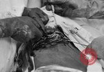 Image of abdominal wound surgery on World War 1 soldier France, 1918, second 43 stock footage video 65675042421