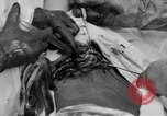 Image of abdominal wound surgery on World War 1 soldier France, 1918, second 44 stock footage video 65675042421