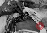 Image of abdominal wound surgery on World War 1 soldier France, 1918, second 45 stock footage video 65675042421