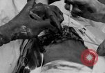 Image of abdominal wound surgery on World War 1 soldier France, 1918, second 47 stock footage video 65675042421