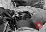 Image of abdominal wound surgery on World War 1 soldier France, 1918, second 56 stock footage video 65675042421