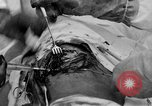 Image of abdominal wound surgery on World War 1 soldier France, 1918, second 57 stock footage video 65675042421