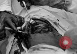 Image of abdominal wound surgery on World War 1 soldier France, 1918, second 58 stock footage video 65675042421