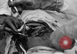 Image of abdominal wound surgery on World War 1 soldier France, 1918, second 59 stock footage video 65675042421