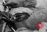 Image of abdominal wound surgery on World War 1 soldier France, 1918, second 60 stock footage video 65675042421