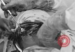 Image of abdominal wound surgery on World War 1 soldier France, 1918, second 62 stock footage video 65675042421
