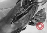 Image of leg surgery on wounded soldier France, 1918, second 42 stock footage video 65675042425