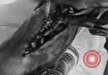 Image of leg surgery on wounded soldier France, 1918, second 53 stock footage video 65675042425