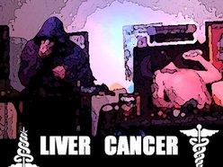 Image for LIVER CANCER