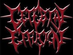 Image for Cerebral Effusion