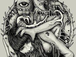 Image for ANUS DISEASE
