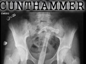 Image for CUNTHAMMER