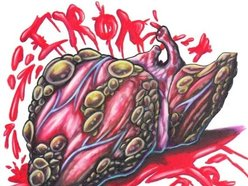 Image for Iron Liver