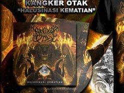 Image for KANGKER OTAK
