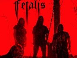 Image for Fetalis