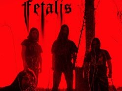 Image for Fetalis