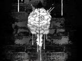Cerebral Down