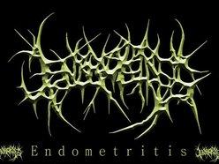 Image for Endometritis