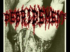 Image for Debridement