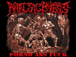 ANAL SICKNESS