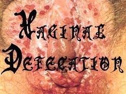 Image for vaginal defecation