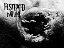 Festered Wound