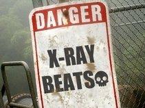 x-ray beats